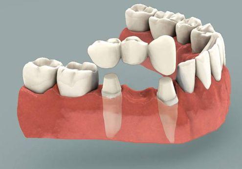 Sunrise Dental Crowns and Bridges