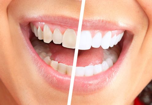 Sunrise Dental Zoom Teeth Whitening
